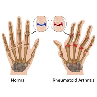 Arthritis Treatment in Mumbai by Neurotherapy