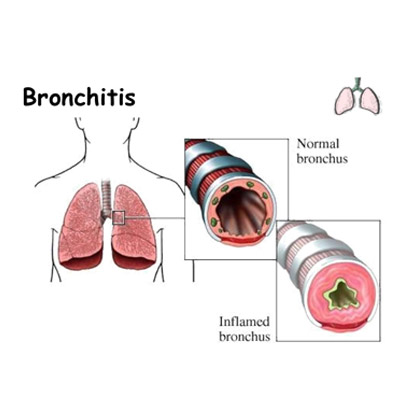 Bronchitis Treatment