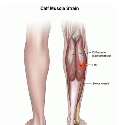 Calf Muscles Pain Treatment in Mumbai by Neurotherapy