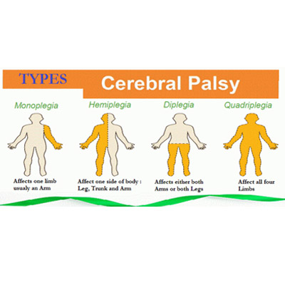 Cerebral Palsy Treatment in Mumbai by Neurotherapy