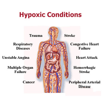 Hypoxia Treatment in Mumbai by Neurotherapy