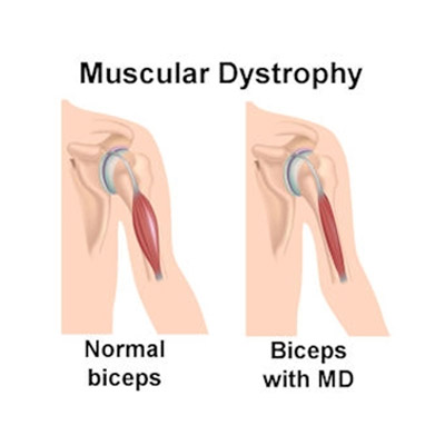 Muscular Dystrophy Treatment in Mumbai by Neurotherapy