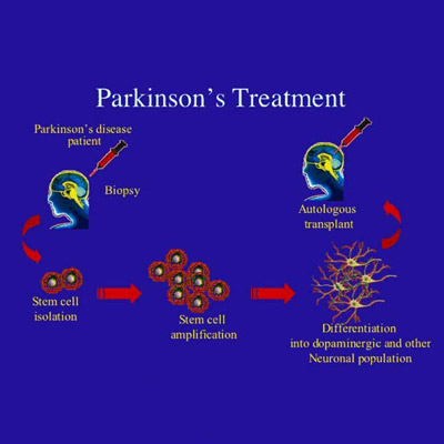 Parkinson Treatment