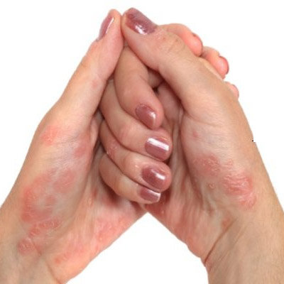 Psoriasis Treatment in Mumbai by Neurotherapy