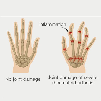 Rheumatoid Arthritis (RA) Treatment
