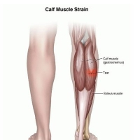 Calf Muscles Pain Treatment