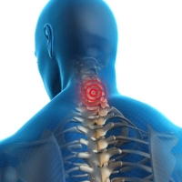 Cervical Spondylosis Treatment